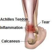 achilles-tendonitis173opt.jpg.pagespeed.ce.bBVtH1XbaK